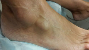 Гигрома на голеностопном суставе