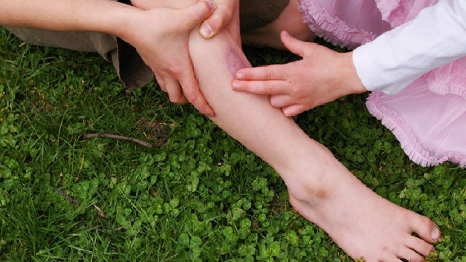 Ушиб костей и мягких тканей голени при падении лечение в домашних условиях народными средствами