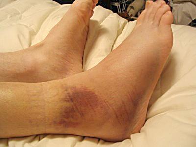 Перелом голеностопа: симптомы, фото, лечение и реабилитация трещин