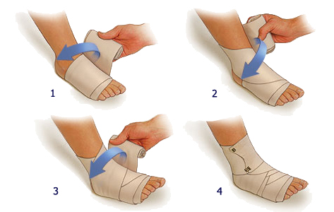 повязка на ногу при растяжении