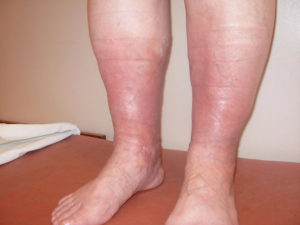 Сильный отек ноги, доходящий до колена
