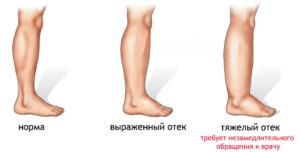 Виды отека ног