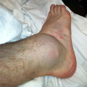 Отек ноги при переломе лодыжки