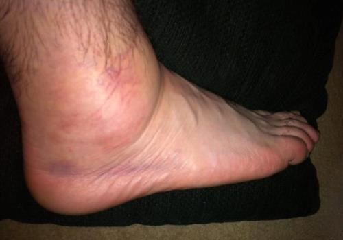 Опухла нога внизу возле косточки и болит что делать как лечить