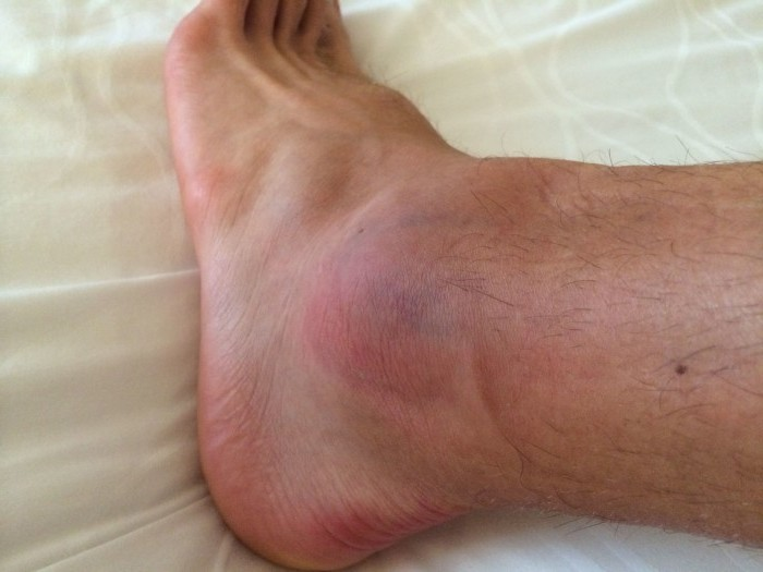 После перелома голеностопа болит колено разрыв связки коленного сустава операции