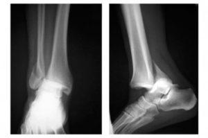 Артрит голеностопного сустава на рентгеновском снимке