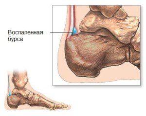 Изображение - Киста голеностопного сустава лечение pjatochnyj-bursit-1-300x240-1-300x240