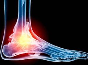 Изображение - Рентгенография голеностопного сустава rak-stopy-300x222