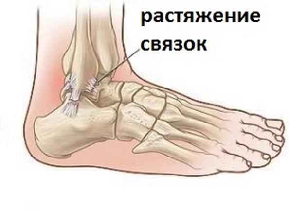 Коленно-стопный сустав, повреждение связок и их восстановление воспаление суставах и мышцах