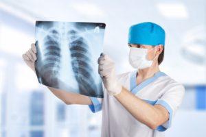 Изображение - Рентгенография голеностопного сустава rentgen-300x200