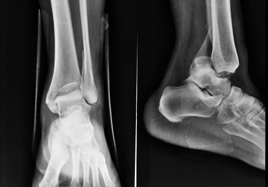 Норма и патология на рентгене голеностопного сустава. Рентгеновский снимок голеностопного сустава и лодыжки человека в норме