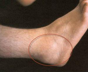 Бурсит голеностопного сустава народными средствами инвалидность при эндопротезе тазобедренного сустава