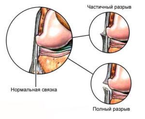 Вывих голеностопного сустава время восстановления
