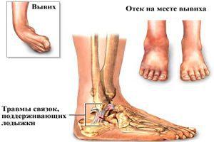 Травмы голеностопа