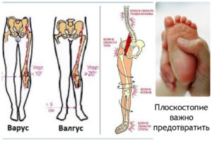 Вальгусная деформация нижних конечностей у детей: особенности, причины и лечение