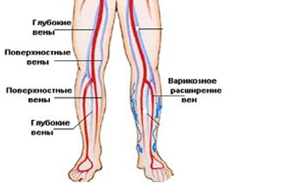 Вены голени и их анатомия: суральные, большеберцовая, глубокие ...