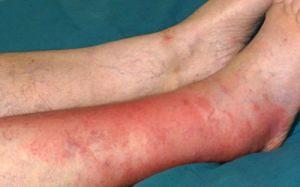 Воспаление надкостницы голени лечение боли при беге ушибы и жжение