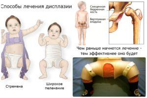 Фиброма большеберцовой кости голени код по МКБ-10 фото образований и их лечение