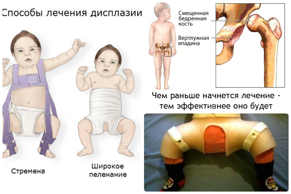 Бурсит на пальце ноги лечение