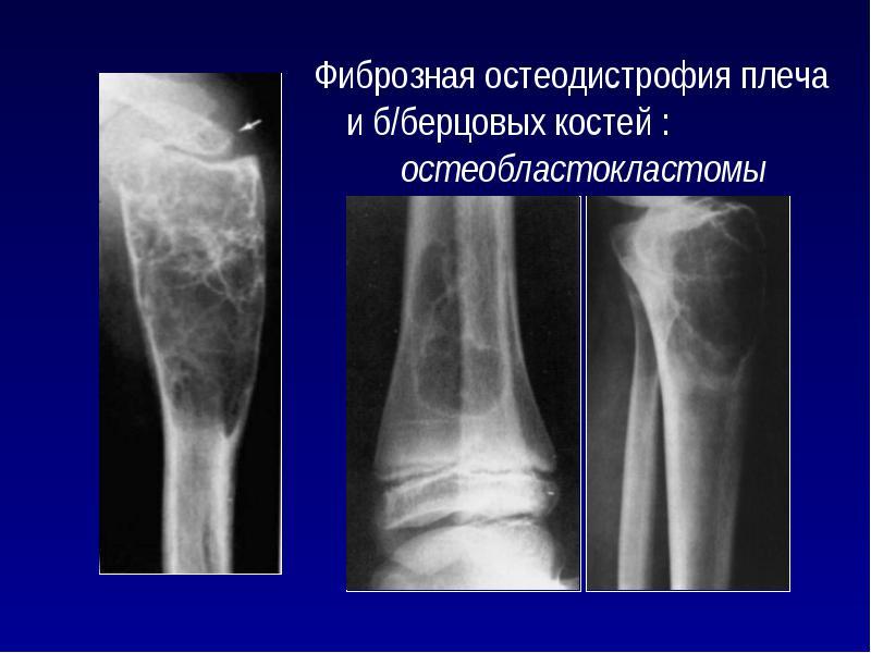 Фиброзная дисплазия большеберцовой кости у ребенка: лечение, код по МКБ-10