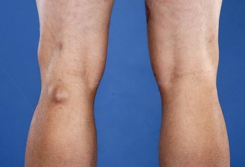 Грыжа на ступне ноги - диета, первые признаки, побочные эффекты, препараты