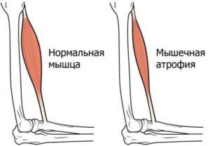 Атрофия мышц ног причины