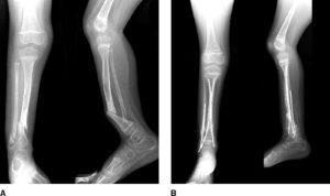 Восстановление после закрытого и открытого переломов большеберцовой кости