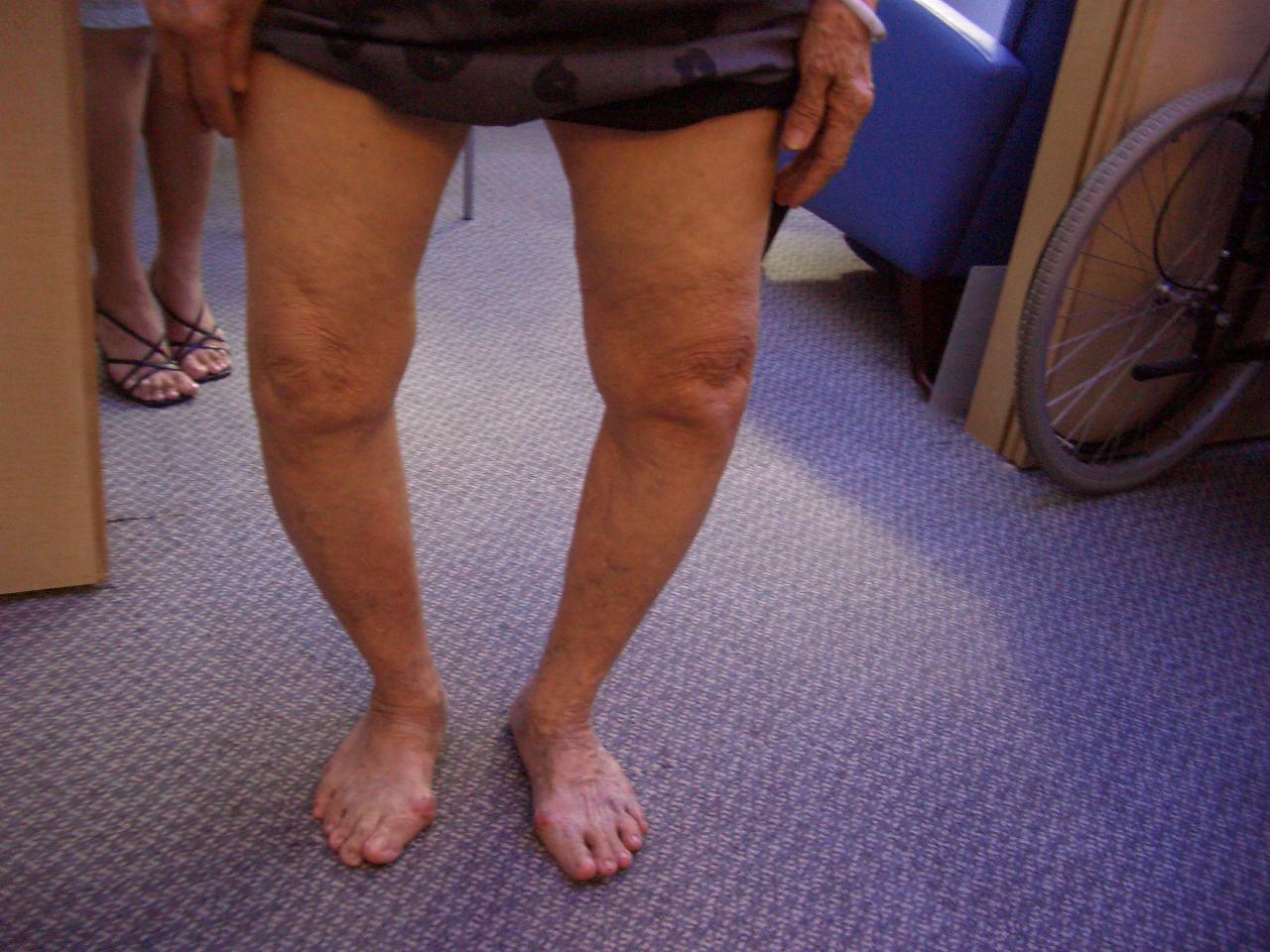 Варусная деформация голени у детей – фото, лечение