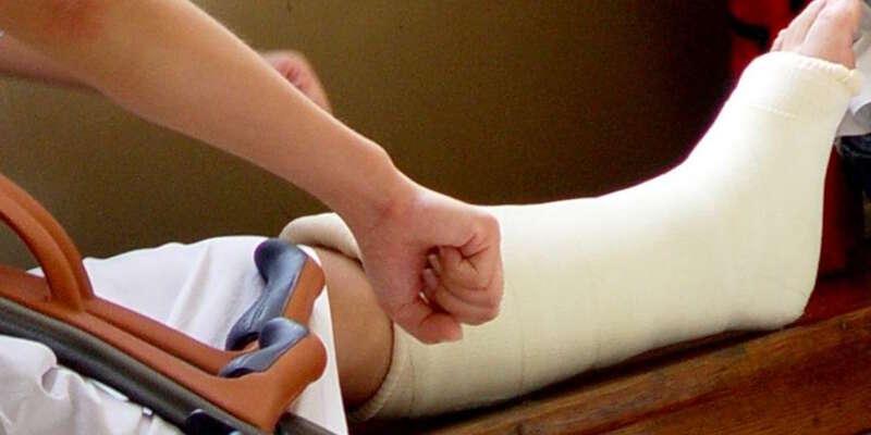 Почему при переломе лодыжки гипс накладывают выше колена