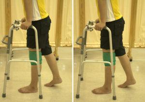 Что делать если трещина в кости. Симптомы трещины стопы ноги