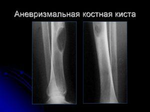 Малая берцовая кость - Мое Здоровье