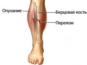 Как определить трещину в кости 🚩 если трещина на ноге симптомы 🚩 Здоровье и медицина 🚩 Другое