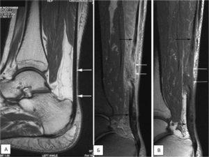 Теносиновит полуперепончатой мышцы коленного сустава