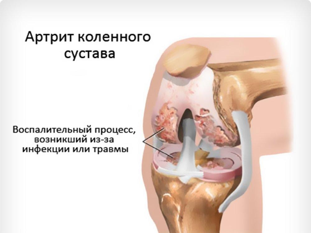 Чем отличается артрит от артроза коленного