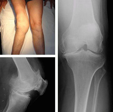 Основные симптомы и методы лечения артроза коленного сустава 4 степени