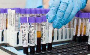 Биохомический анализ крови