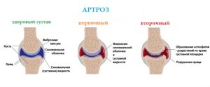 Виды артроза