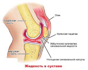 Воспаление внутри колена