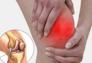 Воспаление колена