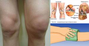 Воспаление связок коленного сустава, лечение