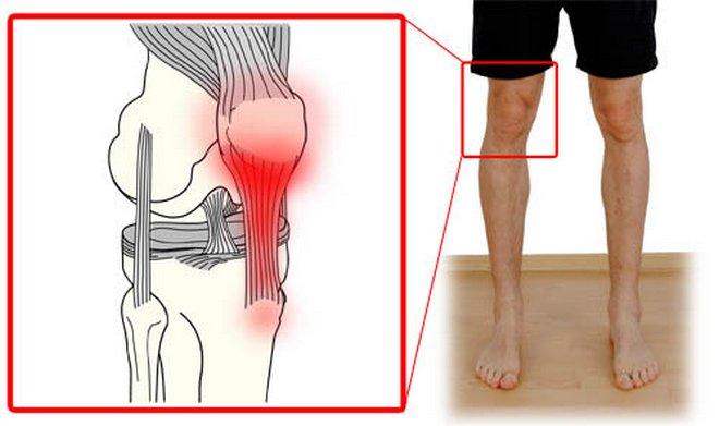 Лечение воспаления связок коленного сустава артзоз суставов