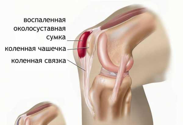 Воспаление мениска коленного сустава средство рассасывающее контрактуры локтевого сустава
