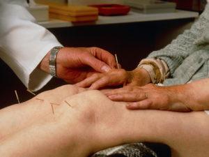 Иглотерапия колена