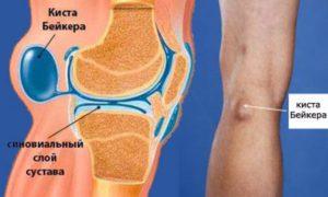 Киста коленного сустава: симптомы, виды, лечение