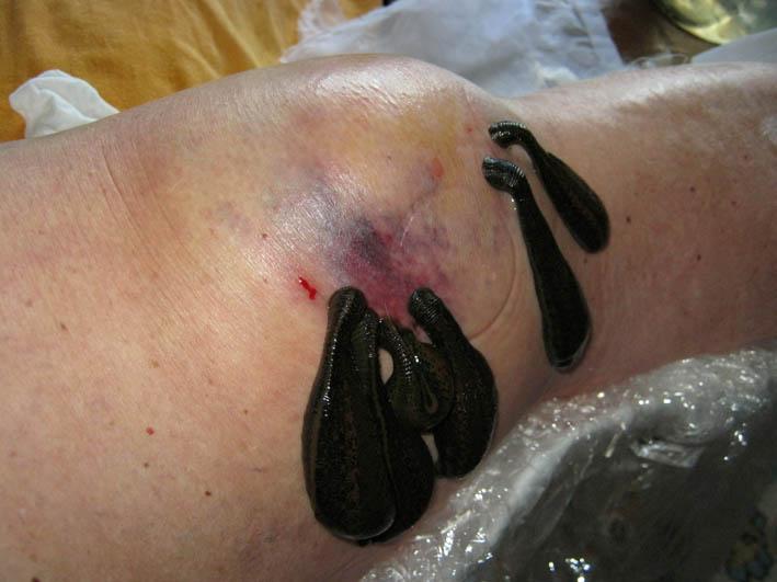 гирудотерапия при артрозе