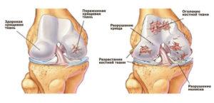 Нарушение хрящевой ткани колена