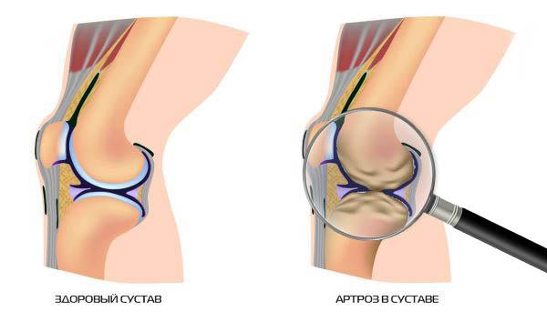 Симптоматика и лечение псориаза в области груди