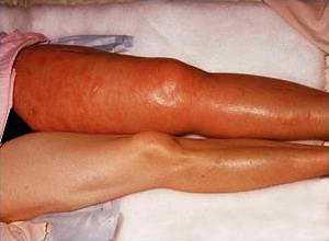 Осложнения после артрита