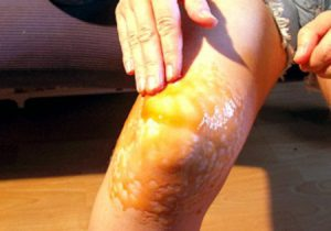 Растирка коленного сустава при артрозе