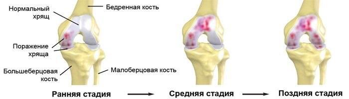 артрит 3 степени коленного сустава